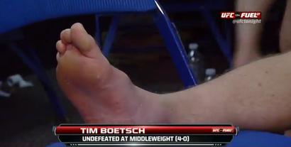Boestsch_foot