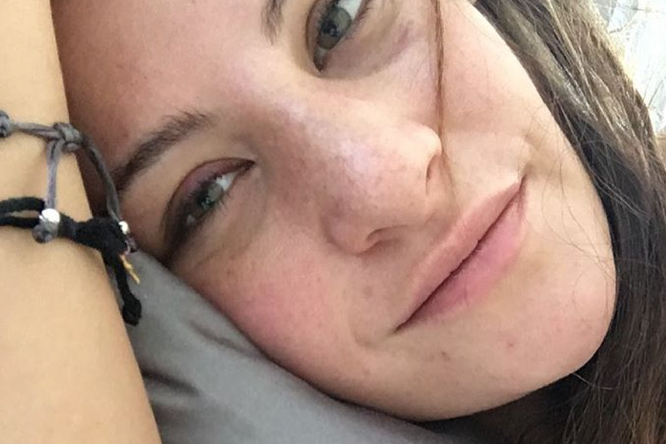 Miesha Tate posts puffy nose pic following surgery, falls short of Squidward level