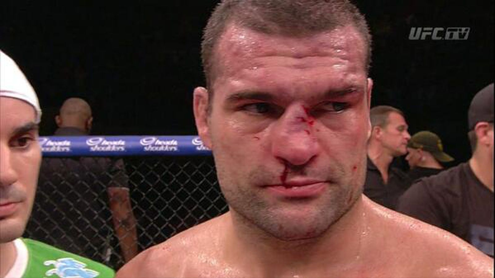 Mma fighter broken nose business! your