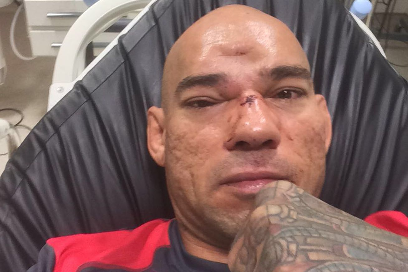 Evangelista Santos to undergo surgery for fractured skull following KO loss to Michael Page