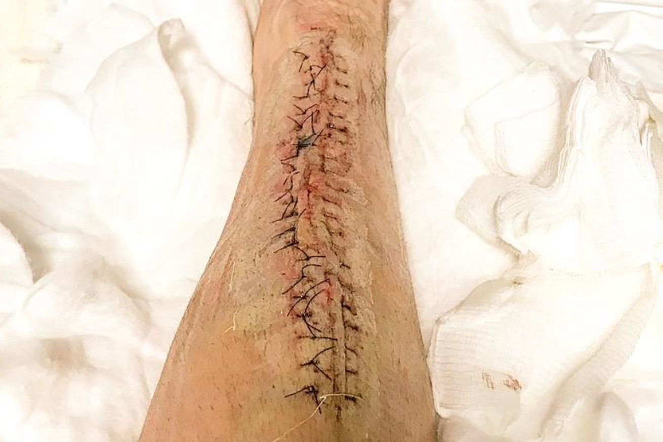 Pic: James Krause left with gnarly scar following multiple staph infection surgeries