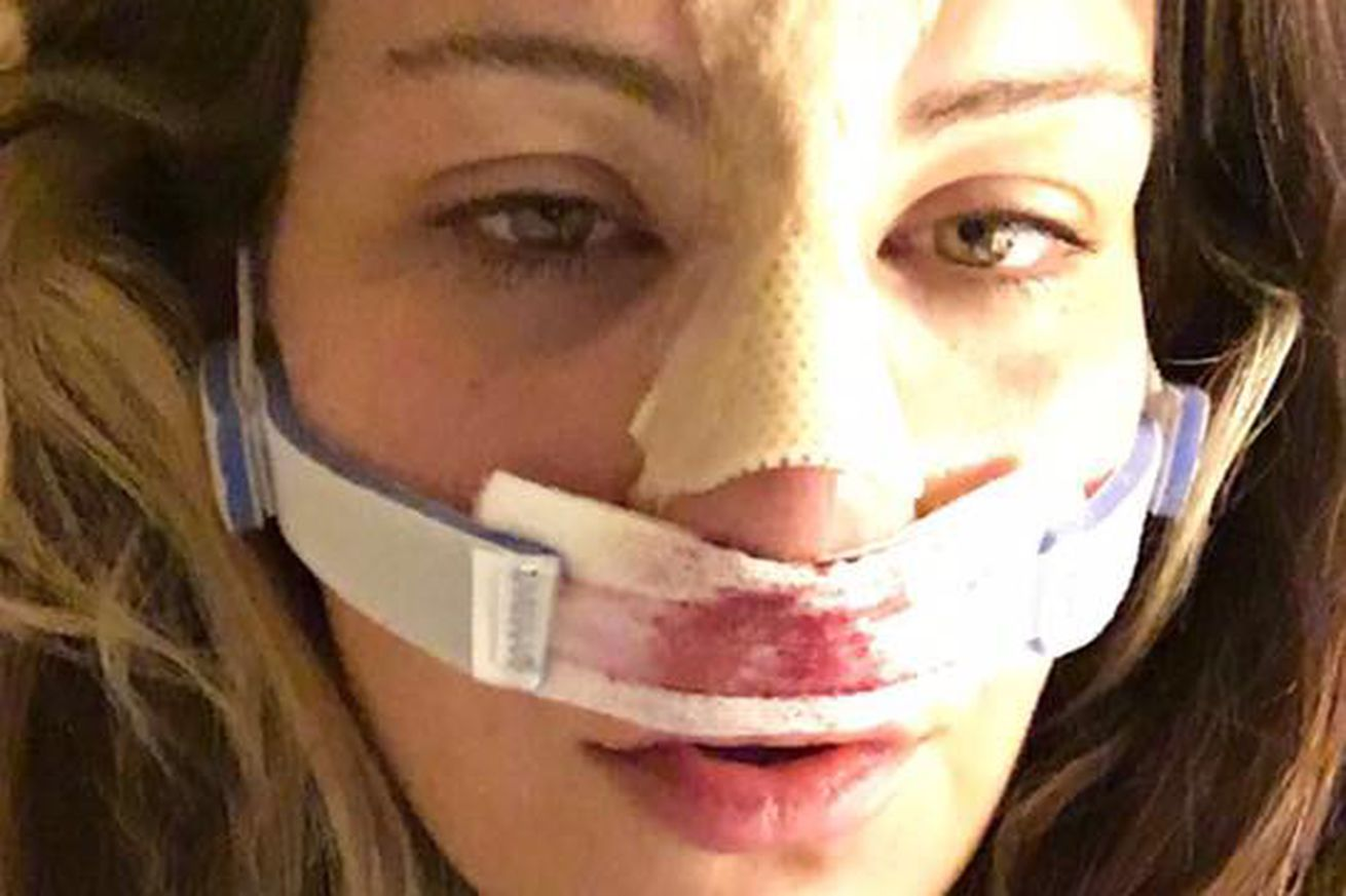 Pic: Miesha Tate is bloody and bandaged (but still beautiful)