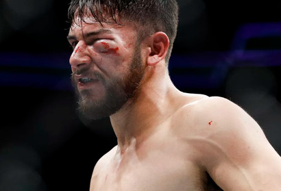 Photo This Is What Frankie Edgar Did To Yair Rodriguez S