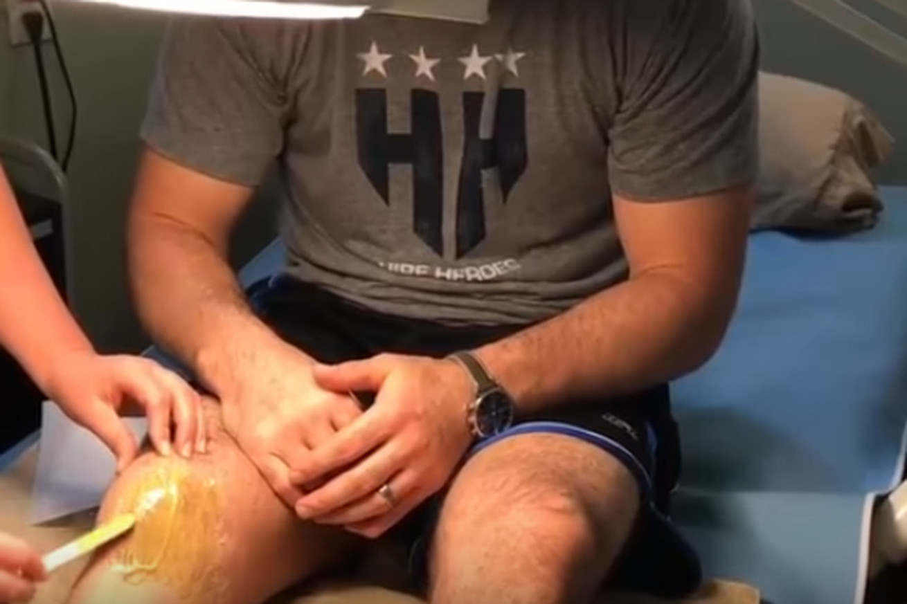 community news, Video: Brian Stann gets his legs waxed after losing bet to Jon Anik
