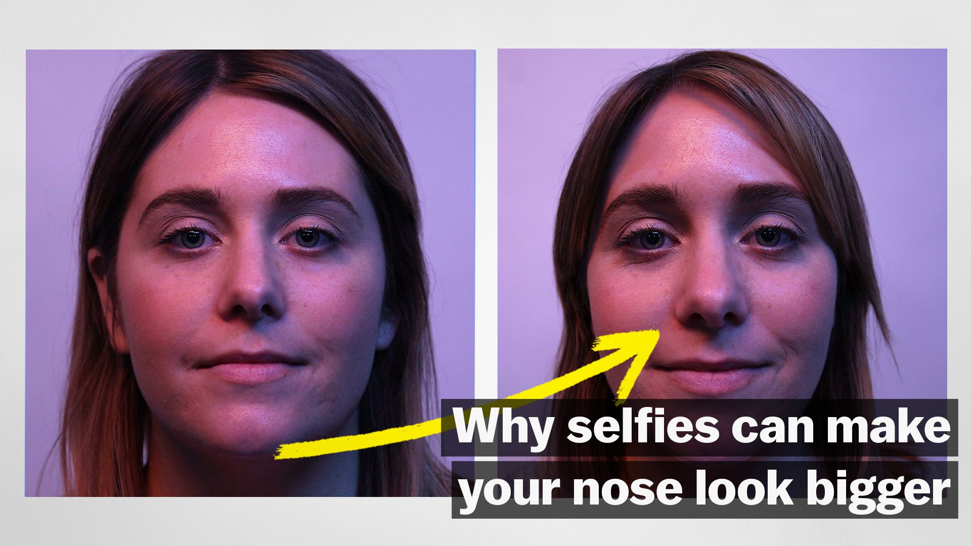 Selfie Face Distortion Is Driving People To Get Nose Jobs Vox