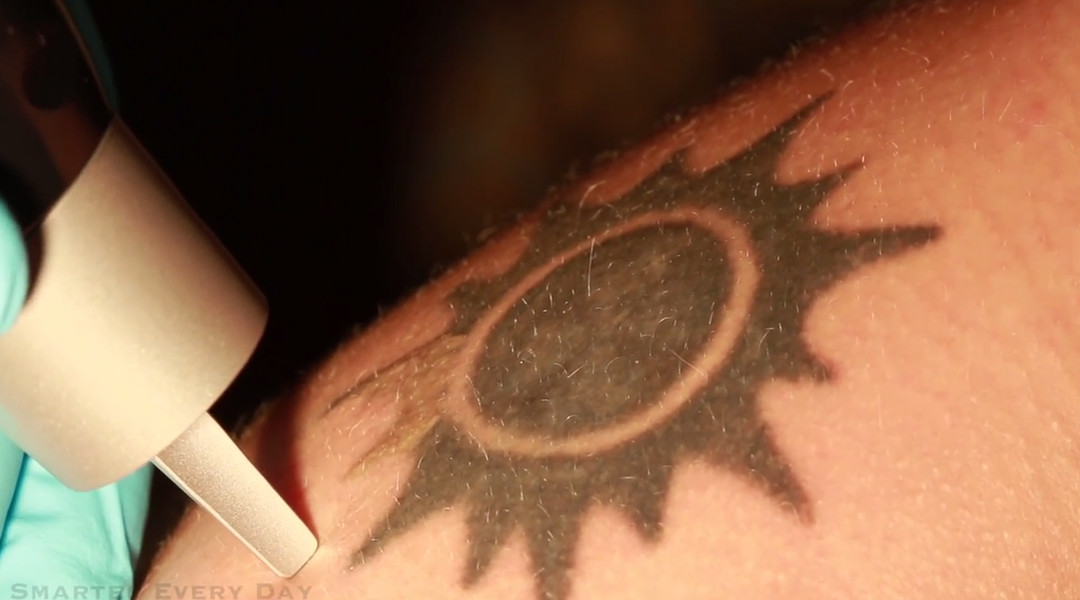 This is what laser tattoo removal looks like - Vox