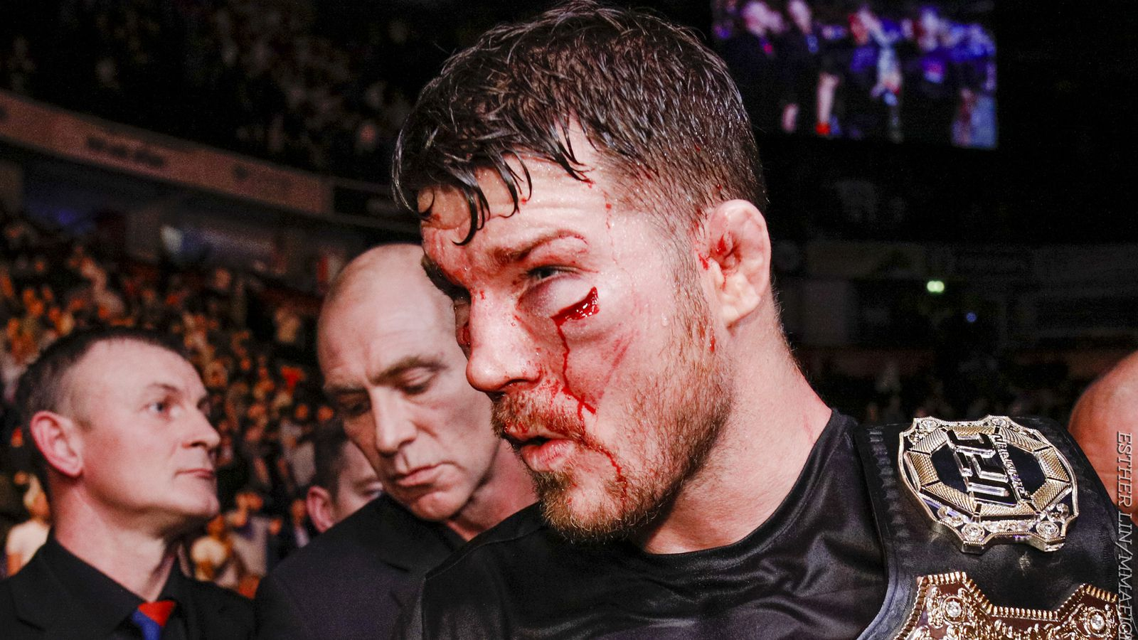 UFC 204 medical suspensions: UFC champ Michael Bisping could be out until April