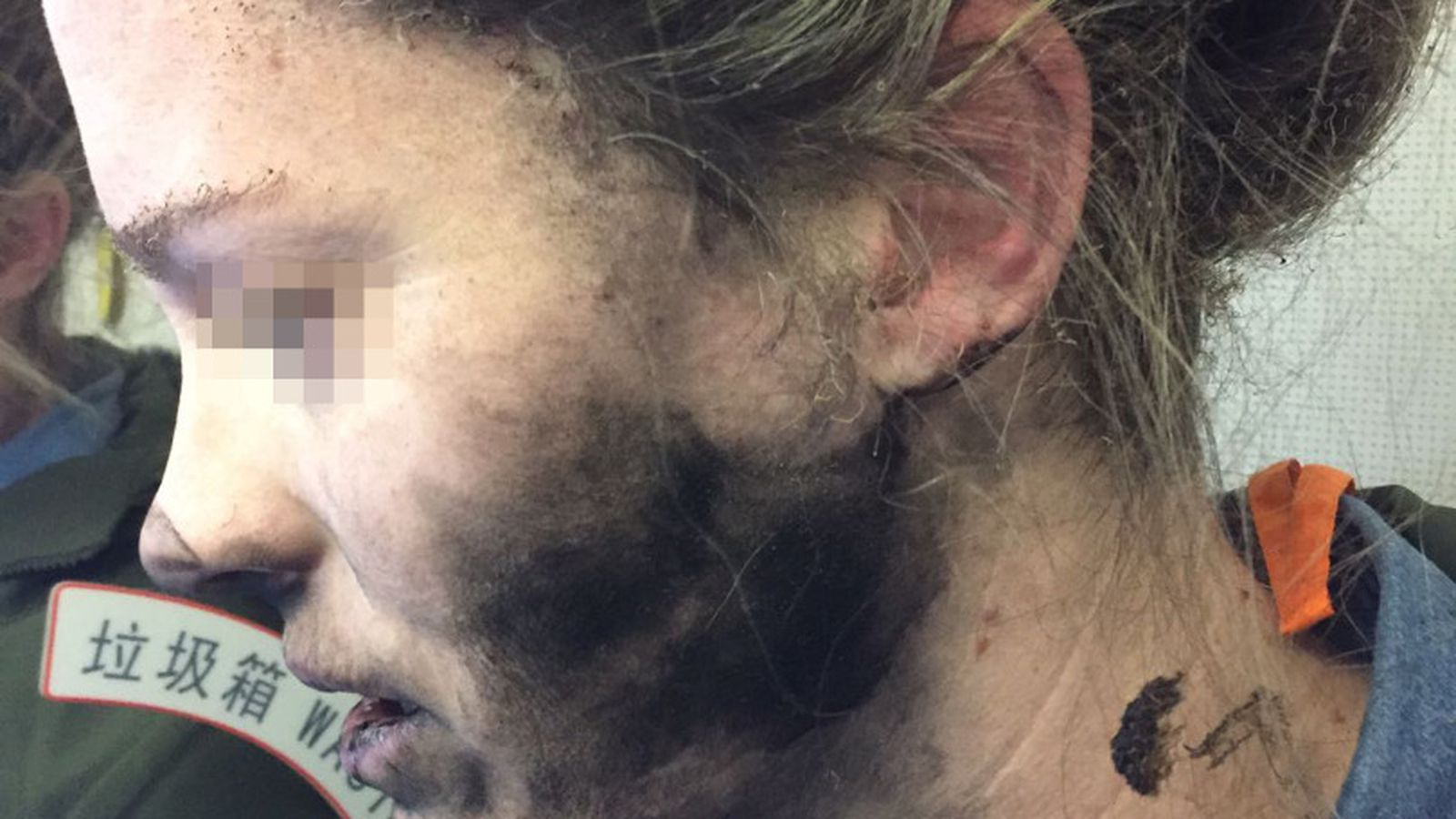photo image Woman was reportedly burned by Beats headphones, Apple blames 'third-party' AAA batteries