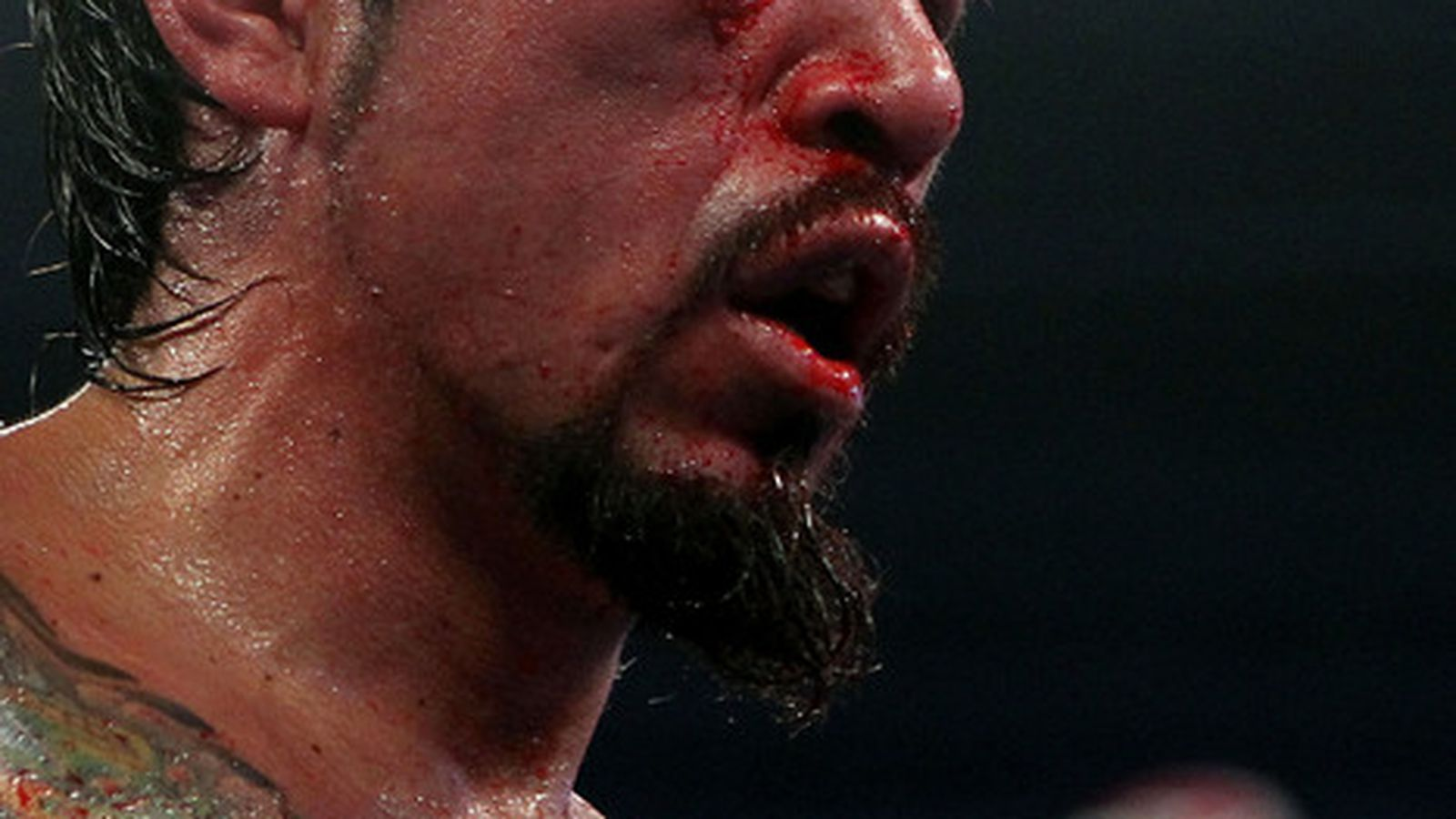 ... Understanding the Margarito Licensing Situation - Bloody Elbow
